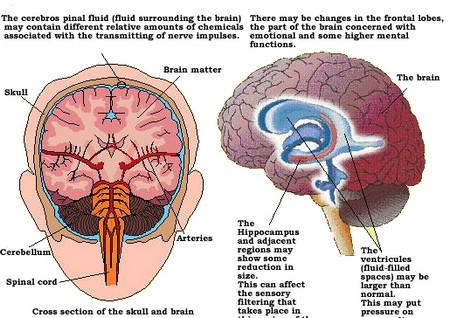 Newly diagnosed brain disease may be misdiagnosed as psychological disorder