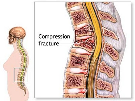 icd 10 code for lumbar compression fracture l2